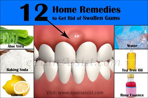 Home Remedy Gum Pain Home Remedies For Toothache That