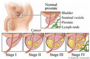 Keeping it Simple (KISBYTO): Prostate Cancer Month