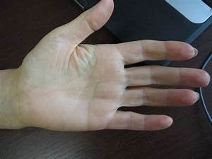 Марганцовка при лечении бородавок
