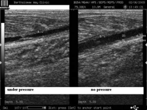 Calf Muscle Tear – Ultrasound imaging case study – Sussex