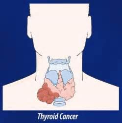 How thyroid cancer develops - development of thyroid cancer - thyroid ... Thyroid Cancer