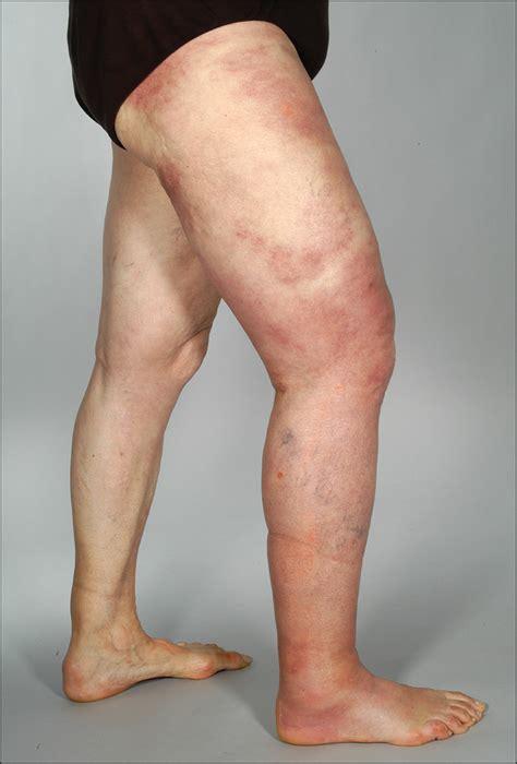 giant cellulitis  sweet syndrome   variant