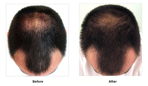 Minoxidil Shedding Phase Pictures by Minoxidil Rogaine Mousse For Hair Loss Origenere Tr1 Foam