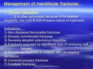 Mandibular Fracture 2    Fixed Orthodontic Courses