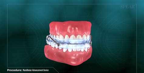 mandibular advancement device lassustandartsennl