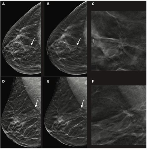 Will having breast implants affect my coverage if i later develop breast cancer or other breast problems? Breast Cancer Detection Better with DBT/Synthetic Mammography Combo | Diagnostic Imaging
