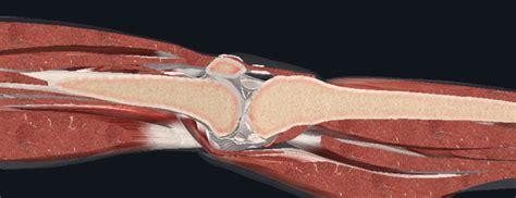 [Webinar] MSK 亚搏app下载链接 in Physiotherapy - Bone Integrity ...