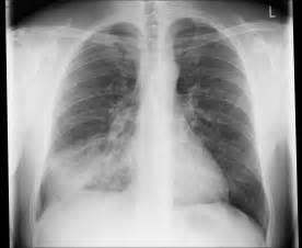 Pneumonia - right middle lobe - Image - Radiopaedia.org Pneumonia