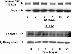 Down-Regulation of β-Catenin TCF Signaling Is Linked to ...