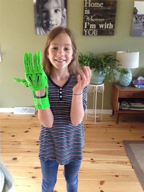 3d hand year printed printing hands prints 3dprint functional sisters prosthetic seek mechanical