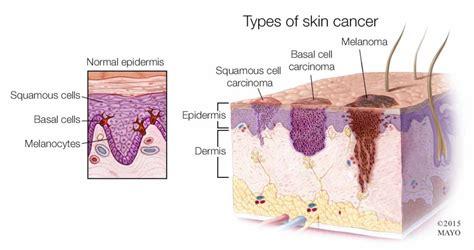 Causes, Symptoms, Treatment