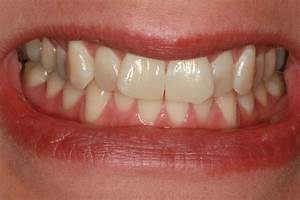 25+ best ideas about Clear Braces Cost on Pinterest ...
