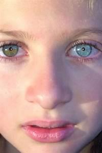 Complete heterochromia, PLUS unilateral central ...