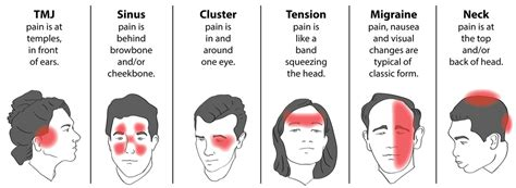 red eye painful sensitivity to light pain behind left eye sensitive to light