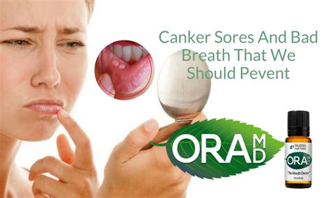 Canker Sores And Bad Breath That We Should Prevent Oramd