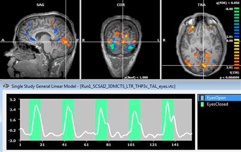 eeg source analysis  eeg fmri coupling