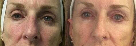 led light therapy before and after led light therapy for acne in nyc