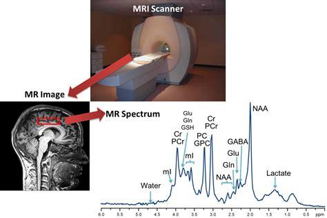 Magnetic Resonance Spectroscopy Research Erin MacMillan