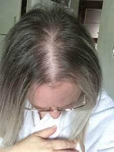 Women U2019s Rogaine U00ae Foam 5  Reviews In Hair Care