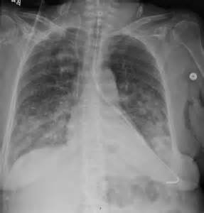 Ng Tube in Lung X-ray