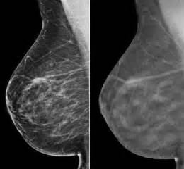 3D Mammogram (breast tomosynthesis) * Diagnostic Centers ...