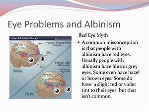 PPT - Albinism PowerPoint Presentation - ID:1930694