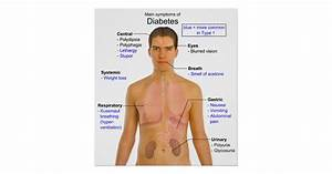 Diagram Of The Main Symptoms Of Diabetes In Humans Poster