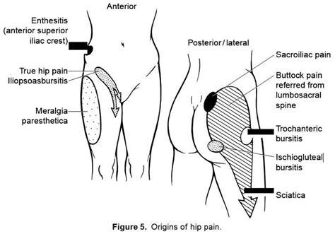 enthesitis hip pain google search creaky pinterest hip pain pain depices  search