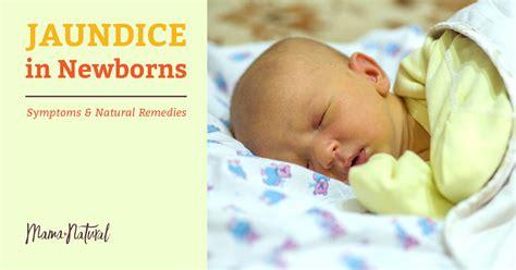 Jaundice In Newborns Natural Ways To Treat This Common