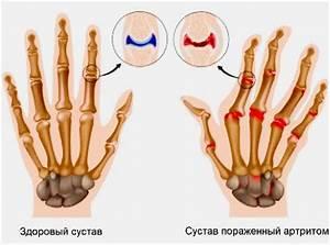 Народные средства лечения артрита суставов пальцев рук лечение