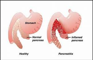 Pancreatitis - Symptoms ,Causes ,Diagnosis and Treatment