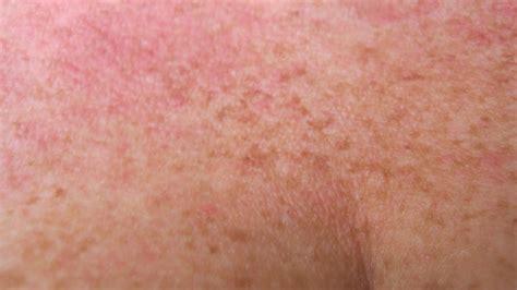 Yeast Rash On Neck Skin Image