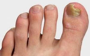 Как лечить грибок ногтей на ногах лазером