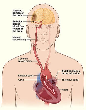 What Is An Embolic Stroke?  Studym. Traffic Us Signs. Yellow Skin Signs. Fire Hazard Signs Of Stroke. Hospital Acquired Signs. Prediabete Signs. Handicapped Signs. Thanksgiving Signs Of Stroke. Park Disney Signs Of Stroke
