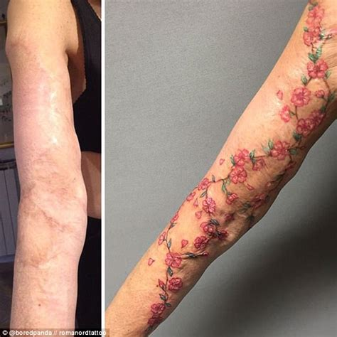 Bored Panda Users Show Scars Turned Into Tattoos Daily