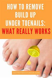 How To Get Rid Of Build Up Under Toenails  The Ultimate Guide