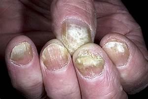 Проверенное средство от грибка ногтей на ногах отзывы