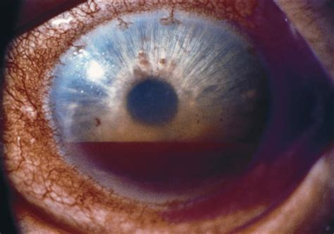 hyphema american academy  ophthalmology