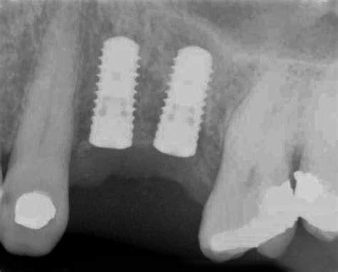 closer peep   titanium dental implantation procedure