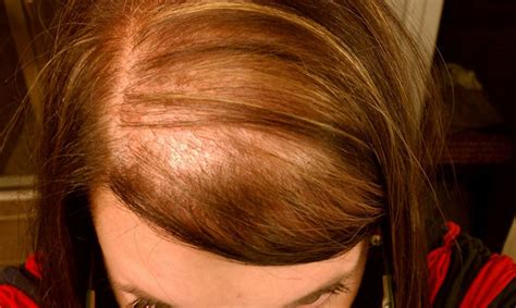 What Is Diffuse Hair Loss?