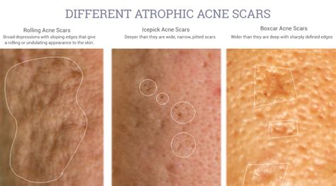 Adapalene 0.3% may help improve the appearance of atrophic ...