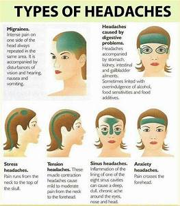 17+ best ideas about Headache Causes on Pinterest ...