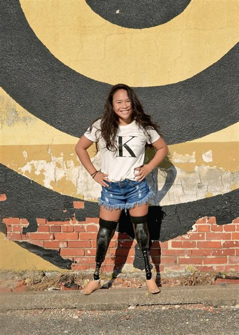 Amputee Teen Left Without Legs After Surviving Suicide Bomb Defies The Odds To Model And Become