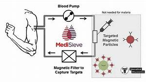 Medisieve Is A New Technology That Can Remove Diseases From The
