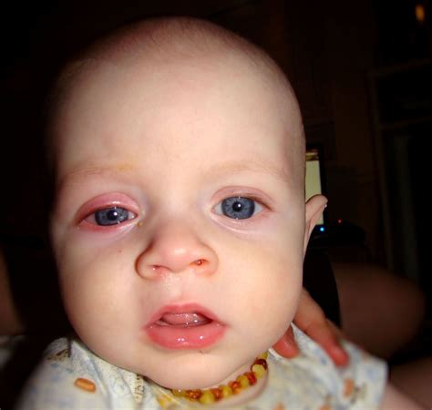 Childhood Diseases On A Mission To Educate Pink Eye
