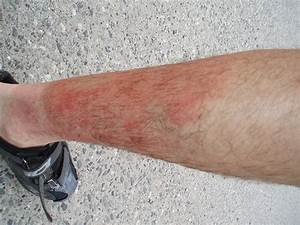 The other leg's sun burn and heat rash | Explore Darren ...