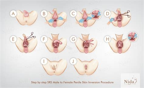 surgery reassignment change operation male gender female sexual thailand surgeries procedures