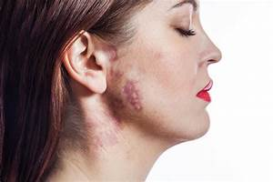 Birthmarks  Causes  Types  And Treatments