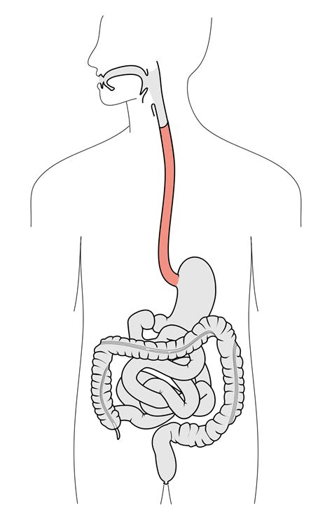 Esophagu Cancer Diagram by Esofago Wikizionario
