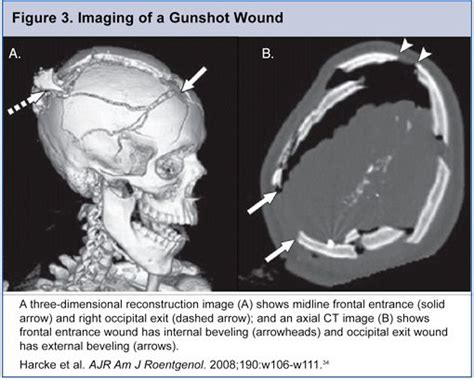 ce lesson postmortem computed tomography